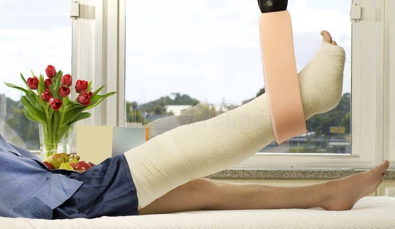 сломленная нога стоковые изображения rf