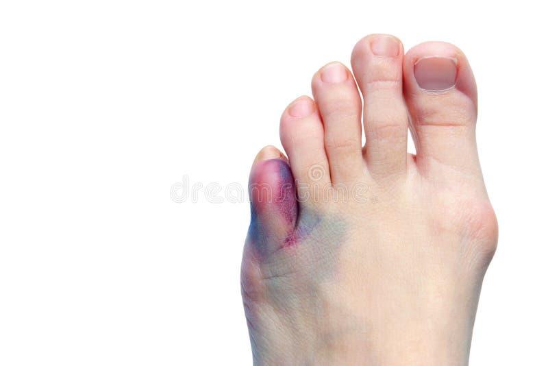 сломленные пальцы ноги bunions синяков стоковые фото
