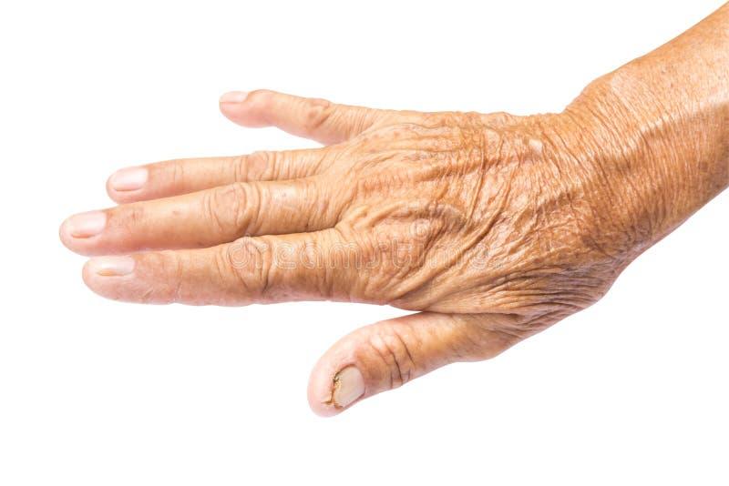 Сморщенный на коже руки старухи с путем клиппирования, здоровым и стоковые изображения