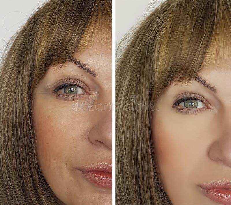 Смотрите на морщинки женщины перед и после поднимаясь терапией косметологии результатов стоковые фото