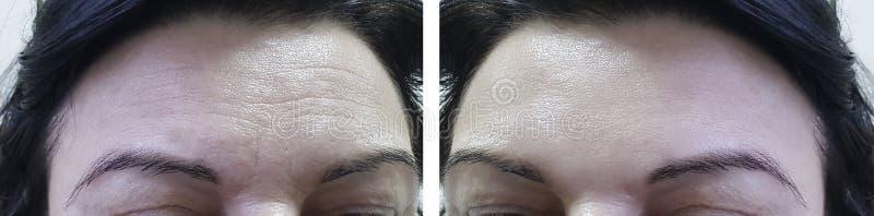Смотрите на пожилые морщинки лба женщины перед и после косметическим коллагеном процедур стоковая фотография