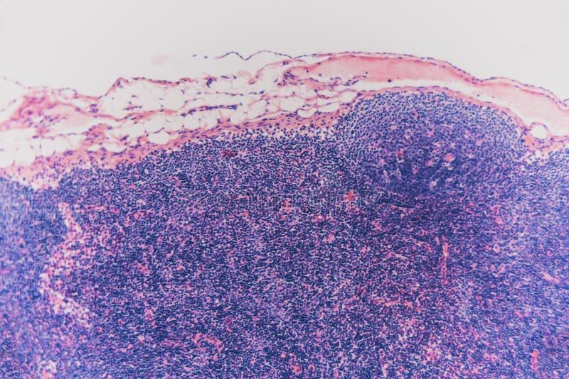 Собака лимфоузлов клетки биологии абстрактная стоковые фотографии rf
