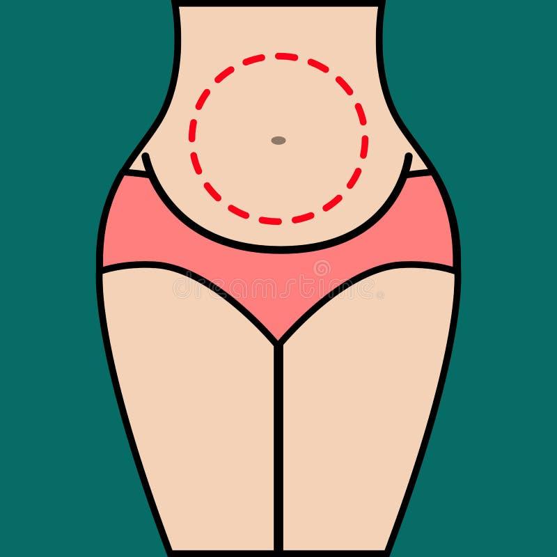 созрейте над женщиной пластической хирургии белой иллюстрация вектора