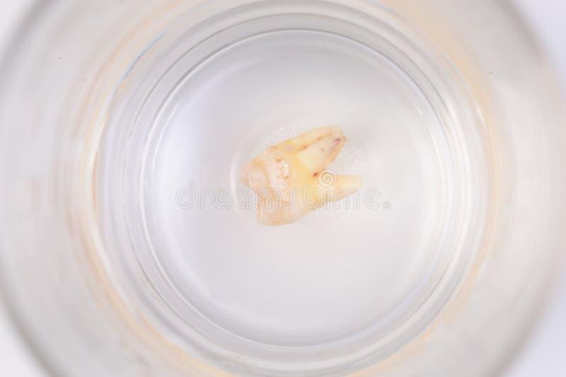 Спад зуба в стекле воды стоковые изображения rf