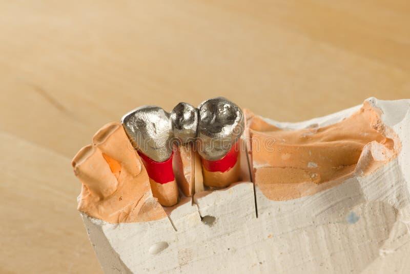 Стальная искусственная зубоврачебная крона для восстановления зубной формулы стоковое фото rf