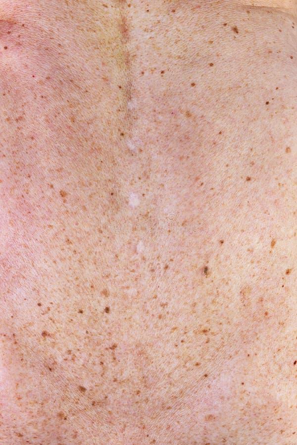 Старая женская кожа стоковые фото