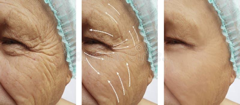 Старик с морщинками на косметологии разнице в результатов стороны перед и после стрелкой процедур стоковое изображение rf