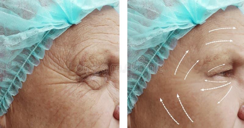 Старик с морщинками на косметологии результатов стороны перед и после стрелкой процедур стоковая фотография