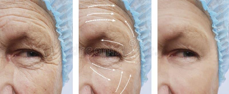 Старик с удалением морщинок на косметологии разнице в результатов стороны перед и после стрелкой процедур стоковое изображение rf