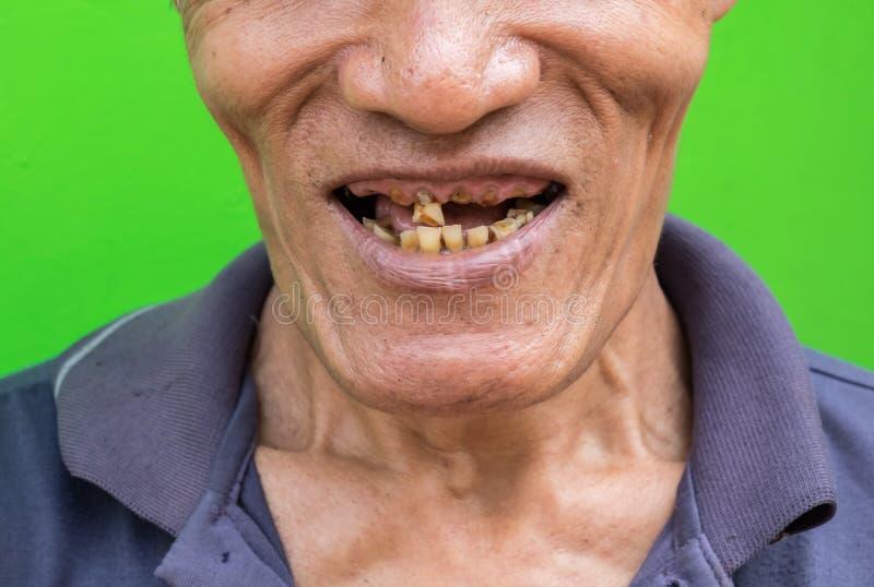 Старик усмехаясь показывающ его зубы непривлекательные на зеленой предпосылке стоковое фото rf