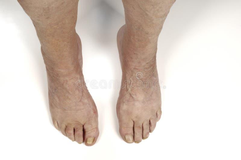 Старшая нога женщины стоковая фотография rf