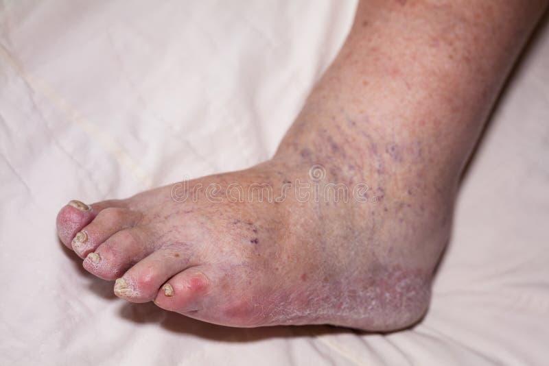 Старшие проблемы ноги стоковое изображение rf