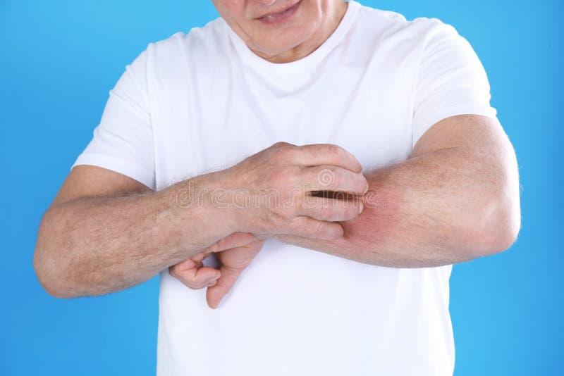 Старший человек царапая предплечье на предпосылке цвета Симптом аллергии стоковые фотографии rf