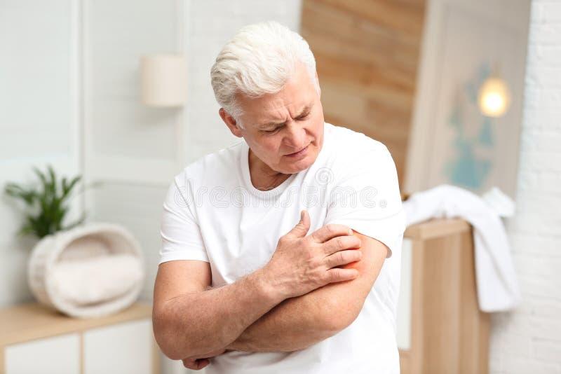 Старший человек царапая руку Симптом аллергии стоковое фото rf