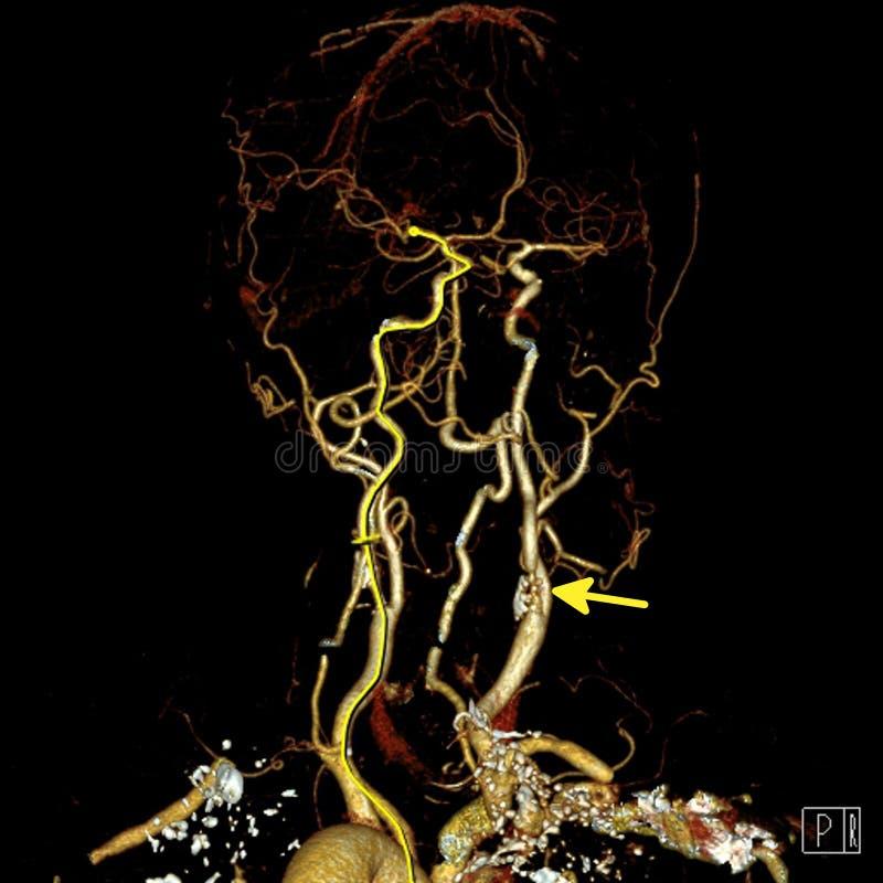 Стеноз сонной артерии стоковое фото rf