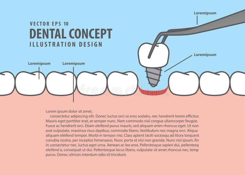 Стиль шаржа зубов Implant плана для информации или книжной иллюстрации иллюстрация штока