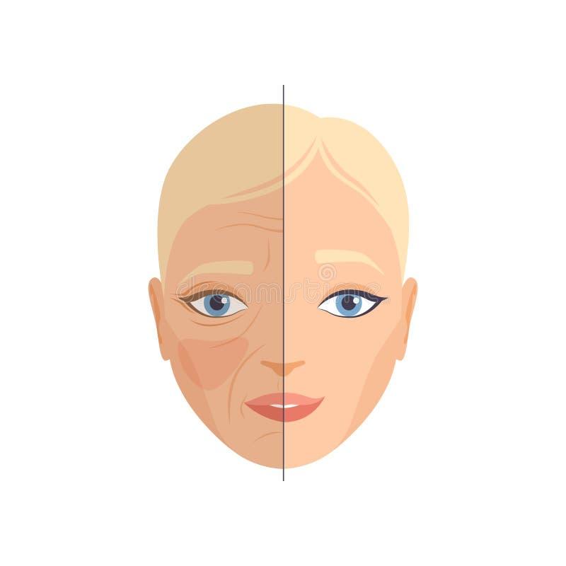 Сторона женщины перед и после косметической процедурой, подмолаживанием стороны, косметологией и анти- вектором концепции вызрева иллюстрация штока