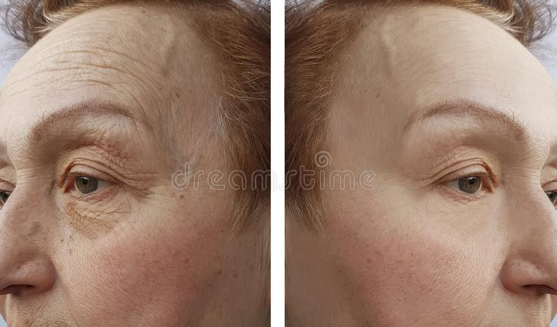 Сторона женщины пожилых людей сморщивает процедуру по дерматологии раньше и aftetherapy r стоковое фото rf
