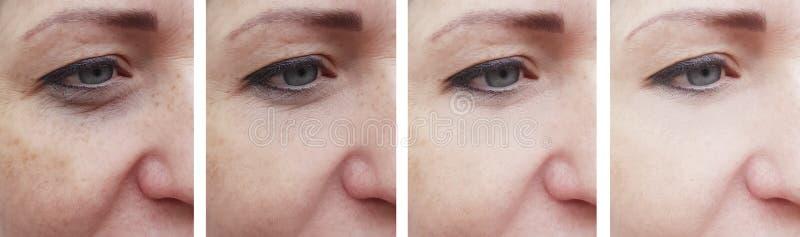 Сторона женщины сморщивает пациента коррекции перед и после подмолаживанием обработки косметологии стоковая фотография