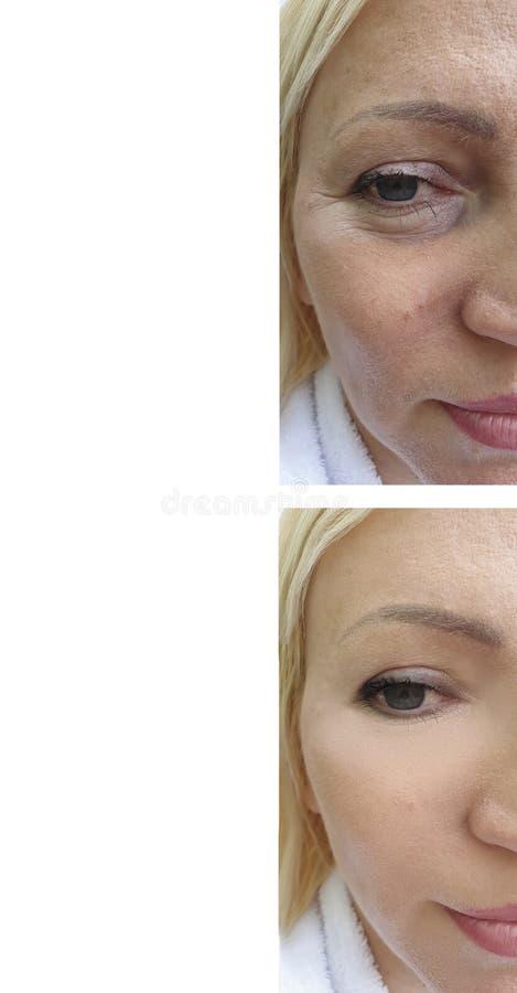 Сторона кожи женщины сморщивает напряжение влияния поднимаясь раньше после antiaging обработок оживления стоковые фото