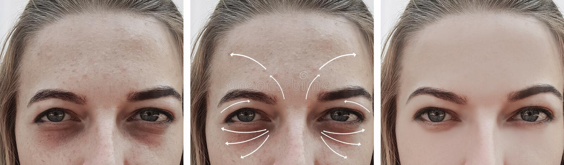 Сторона перед и после процедурами, коррекция biorevitalization влияния морщинок женщины вздутая стоковые изображения