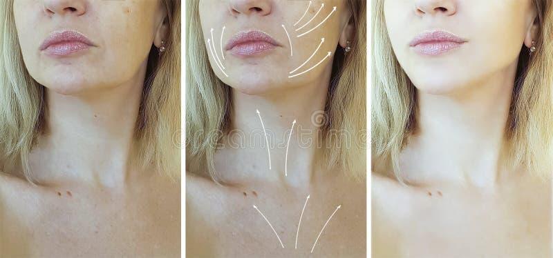 Сторона, пожилая женщина, морщинки, коллаген перед и после процедурами, стрелка коррекции стоковое фото