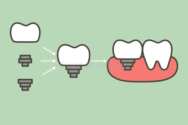 Структура зубного имплантата при все демонтированные части, кроны, устоя, винта - сравните с сильным зубом иллюстрация штока