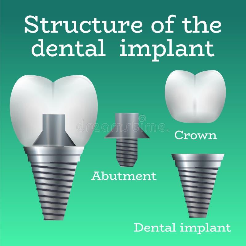 Структура зубного имплантата бесплатная иллюстрация