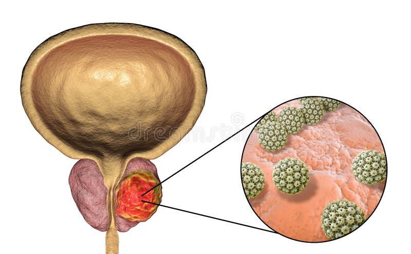 Схематическое изображение для вирусного ethiology рака предстательной железы бесплатная иллюстрация