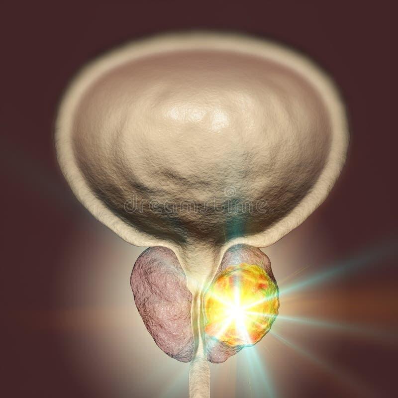 Схематическое изображение для обработки рака предстательной железы иллюстрация вектора