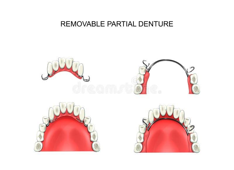 Съемный частично denture бесплатная иллюстрация