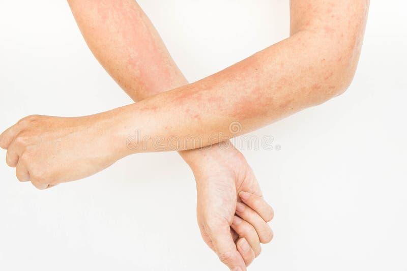 Сыпи на коже, дерматит контакта аллергий, аллергический к химикатам стоковые фотографии rf