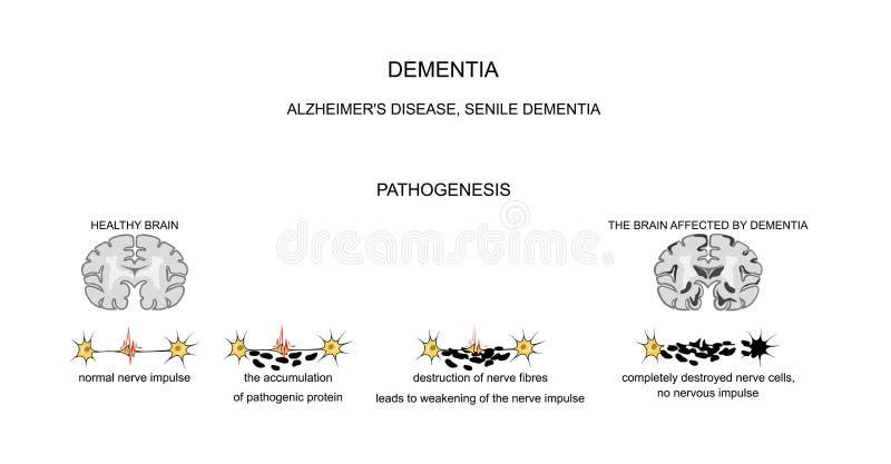 Слабоумие, болезнь Альцгеймера патогенез иллюстрация вектора