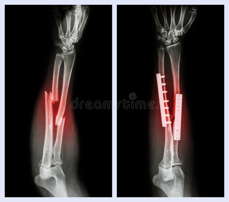 Сломайте оба косточку предплечья Оно эксплуатировалось и внутреннее фиксированное с плитой и винтом стоковые фото