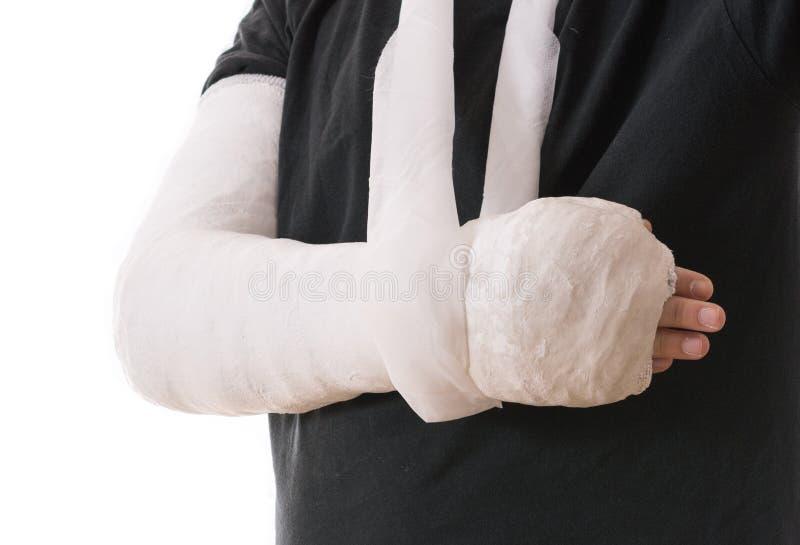 Сломленная рука в белых гипсовой повязке и слинге стоковое изображение rf