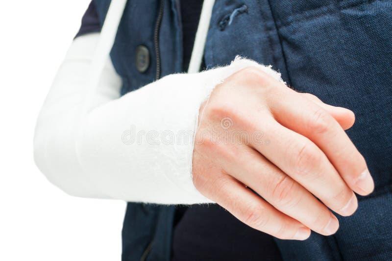 Сломленный локоть с медицинскими повязкой или гипсом стоковое фото