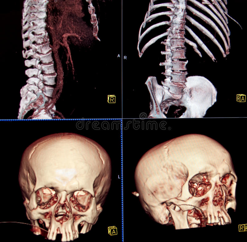 тело bones головка ct стоковое фото rf