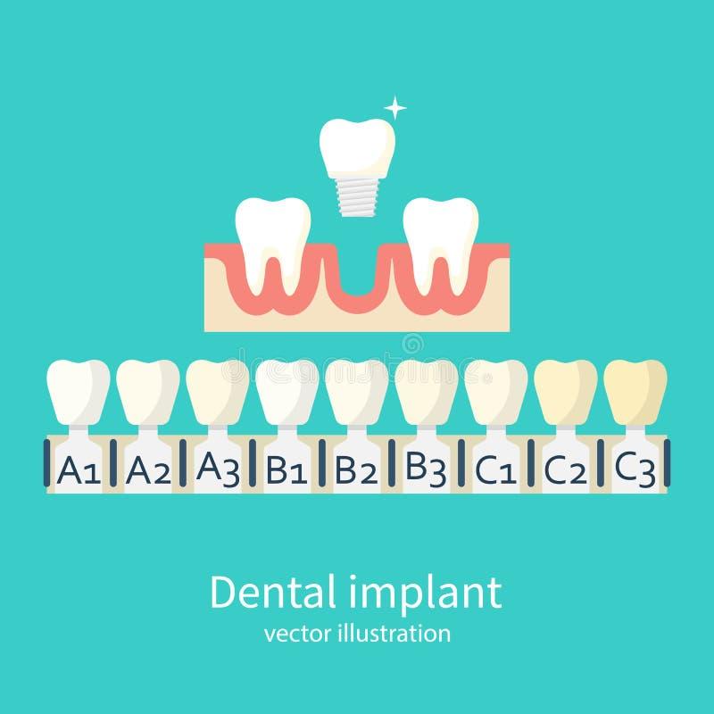 Тени вектора implants бесплатная иллюстрация