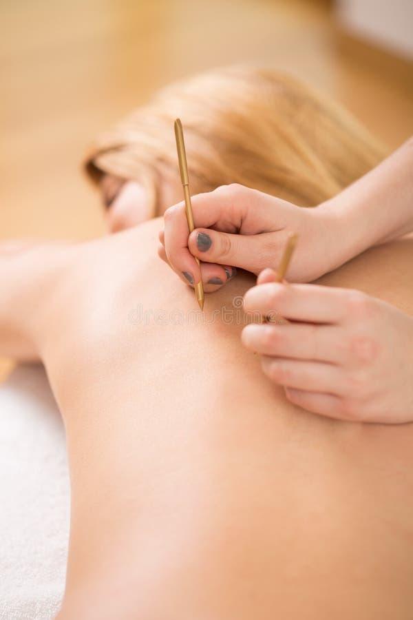 Терапевт прикладывая иглу иглоукалывания стоковое фото rf