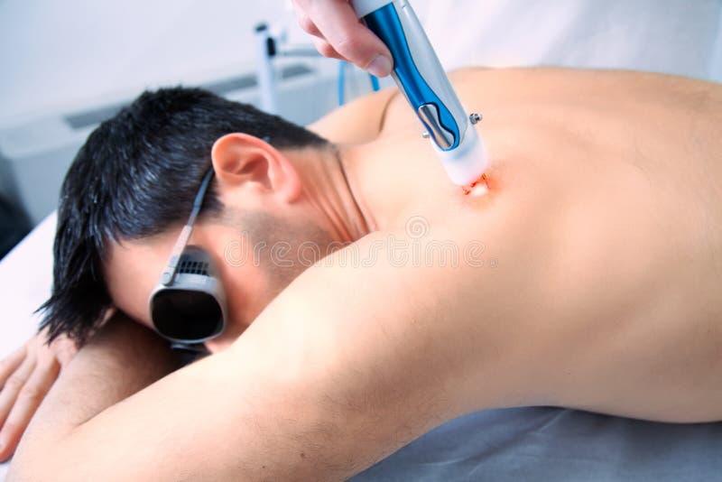 Терапия обработки кожи лазера с человеком темных волос стоковое фото