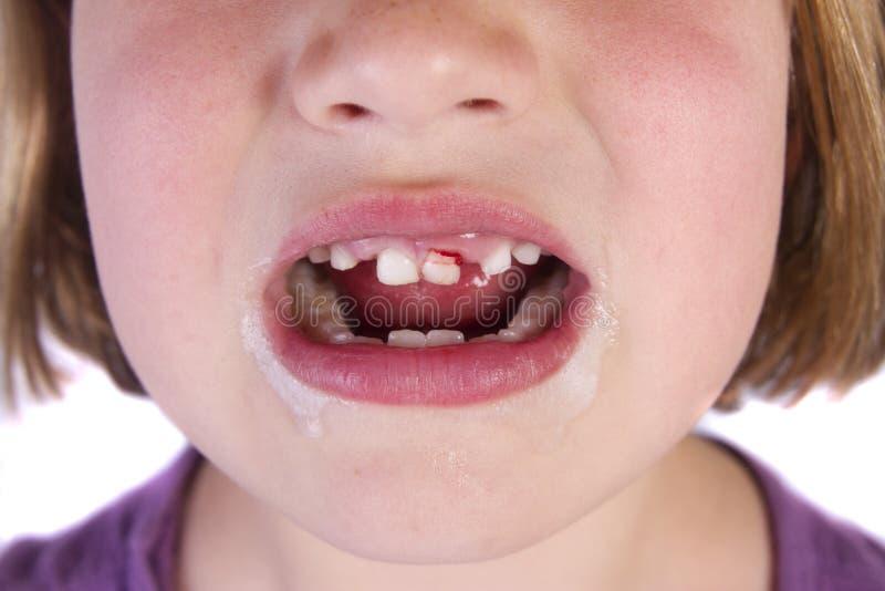 Терять ваши зубы младенца стоковые фотографии rf
