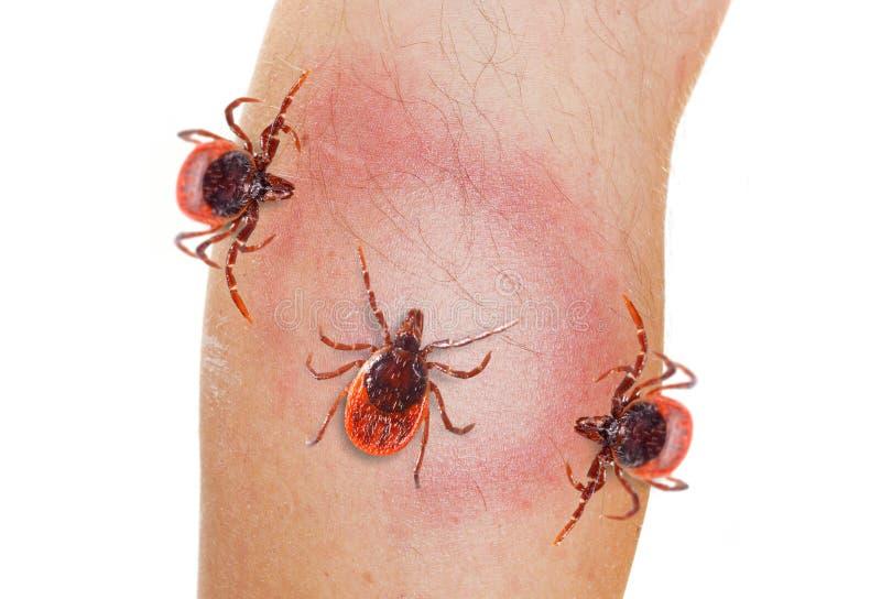 Тикание на человеческой ноге Опасный паразит на человеческой коже стоковые фотографии rf