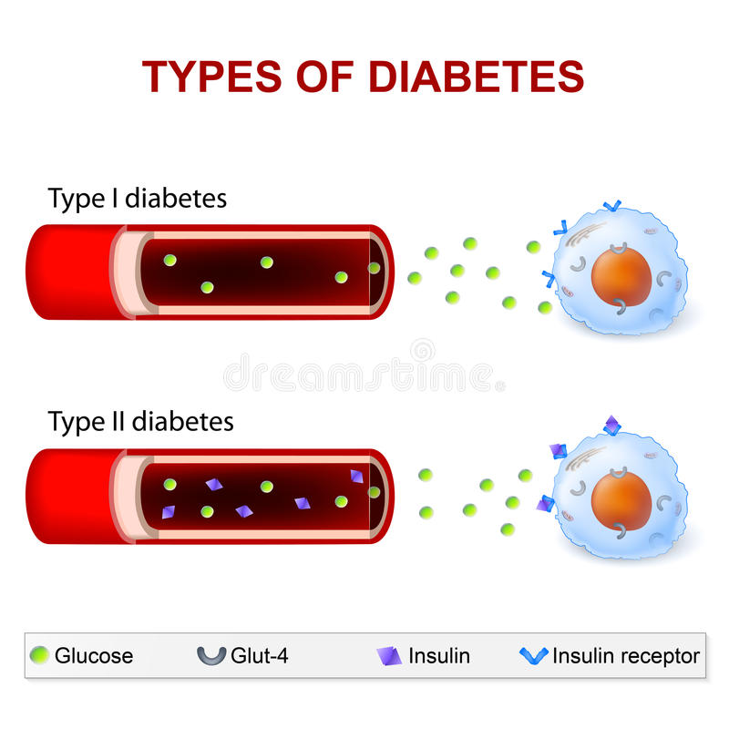 Типы диабета иллюстрация штока