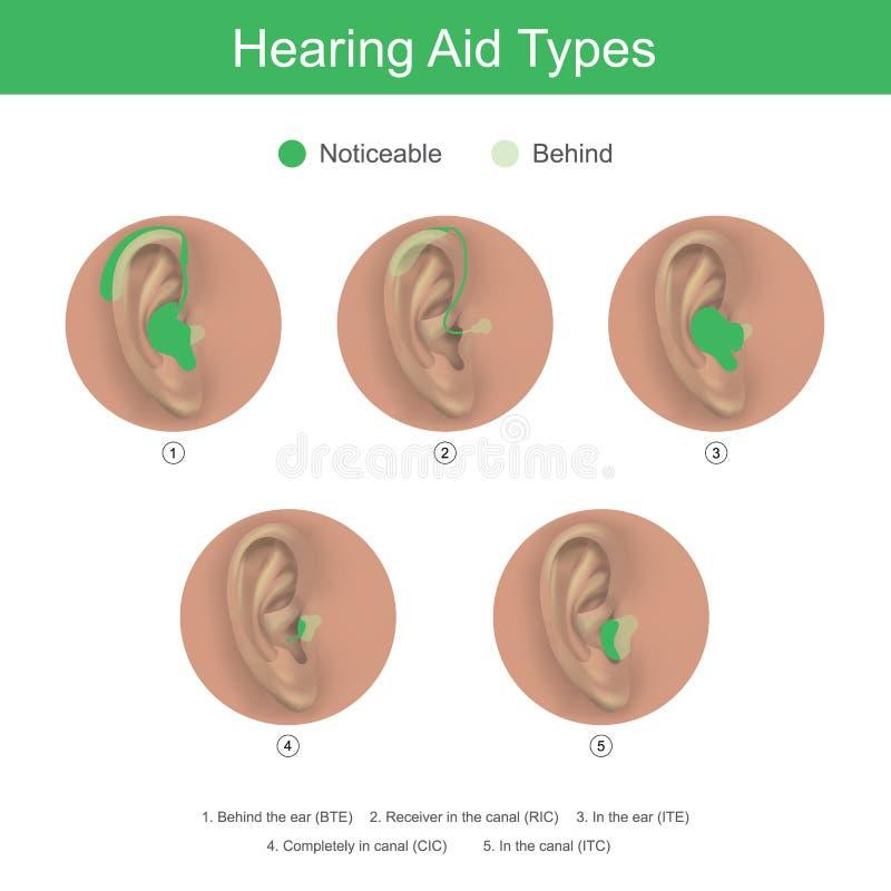 Типы слухового аппарата Продукты здравоохранения иллюстрация вектора