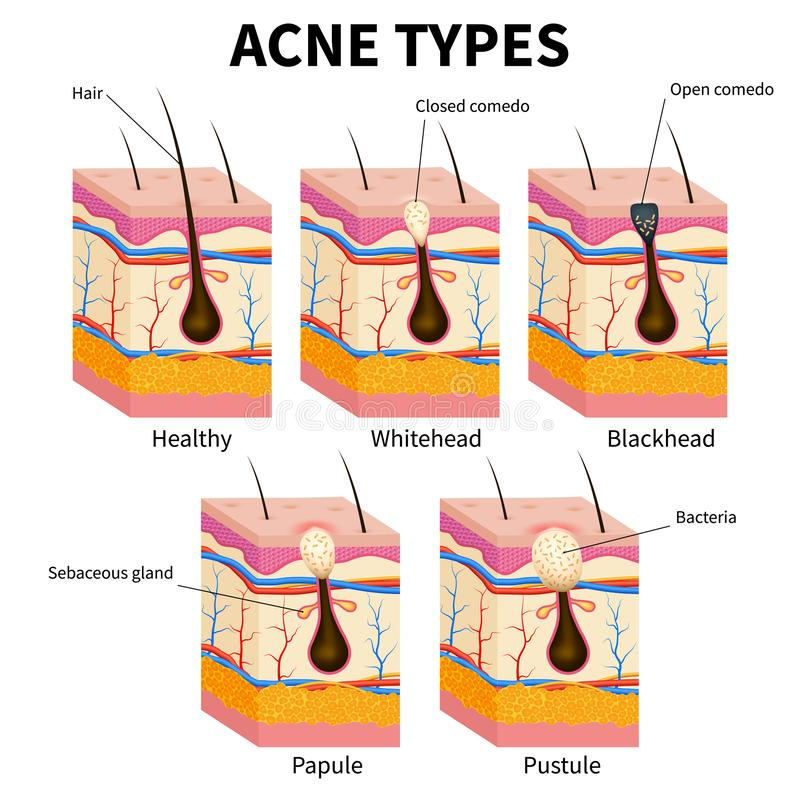 Типы угорь Диаграмма вектора анатомии кожных заболеваний цыпк медицинская иллюстрация вектора