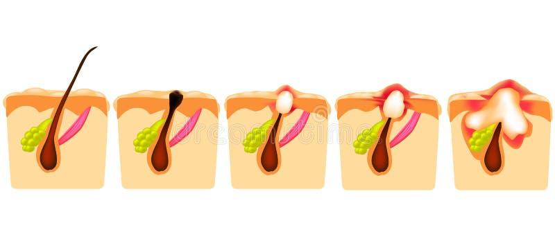 Типы угорь Раскройте comedones, закрытые comedones, воспалительное угорь, кистозное угорь Структура кожи Инфографика вектор бесплатная иллюстрация
