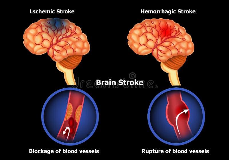 Типы хода человеческого мозга иллюстрация вектора