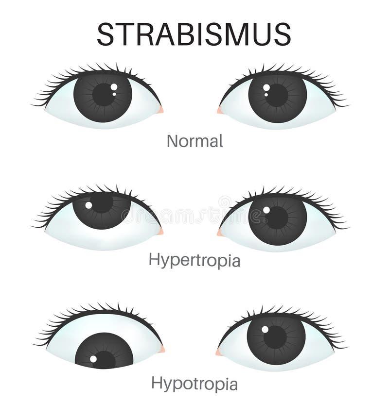 Типы strabismus-1 иллюстрация вектора