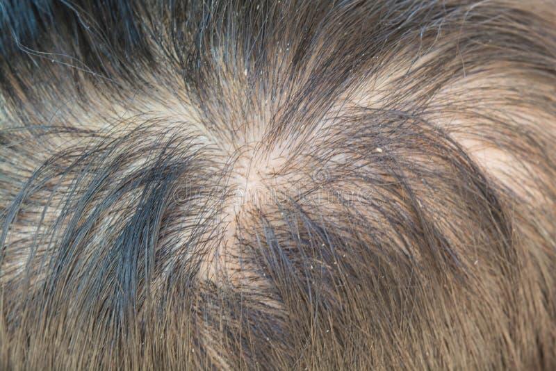 Тонкие волосы и перхоть стоковая фотография