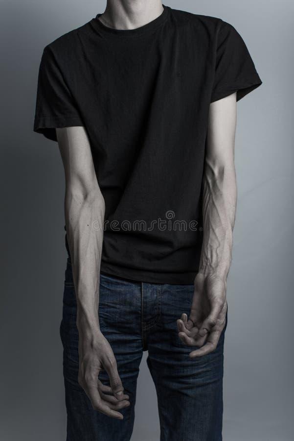 Тонкие руки наркомана лекарства стоковое изображение rf